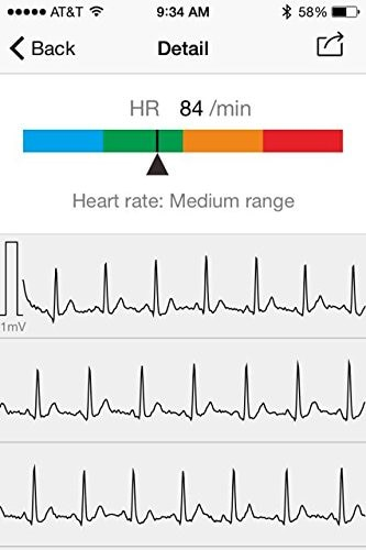 ECG/EKG Holter Tracker Portable Household Health Rate Oximeter with Blood pressure Monitor PC or bluetooth APP for Fitness Sport